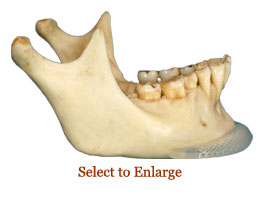 Chin Implant Photograph