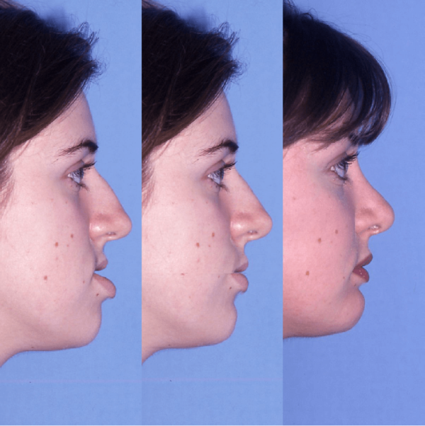 Corrective And Orthognathic Jaw Surgery Dr Richard W Joseph